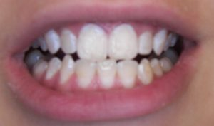 Decalcification After