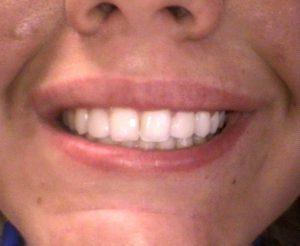Composite Veneers After